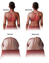 Scoliose behandeling volwassenen met Schroth therapie